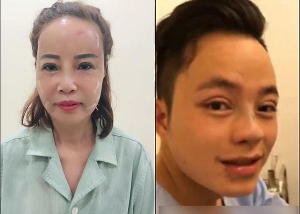 Thấy vợ phẫu thuật trẻ hóa, chú rể 26 không chịu thua kém, quyết đi nâng mũi để mong hóa soái ca Hàn Quốc