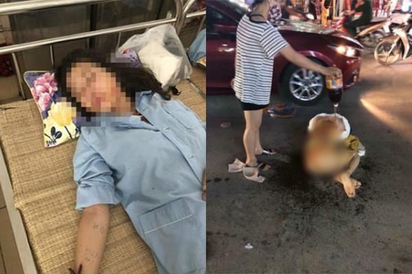 Đánh ghen ở Thanh Hóa: Cô gái bị lột đồ, đổ nước mắm và muối ớt vào người lên tiếng tiết lộ sự thực bất ngờ!