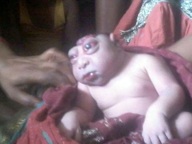 Hãi hùng cảnh em bé suýt bị mẹ bỏ rơi vì sinh ra giống người ngoài hành tinh