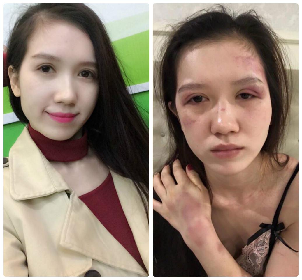 """Tâm sự đau đớn của người vợ xinh đẹp bị chồng đánh đập tàn bạo: """"Cứ dăm ba bữa lại đánh một trận"""""""