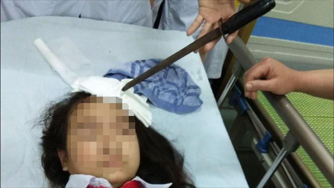 Học sinh lớp 7 nghịch hung khí, một nữ sinh bị phóng dao cắm vào trán nhập viện khẩn cấp