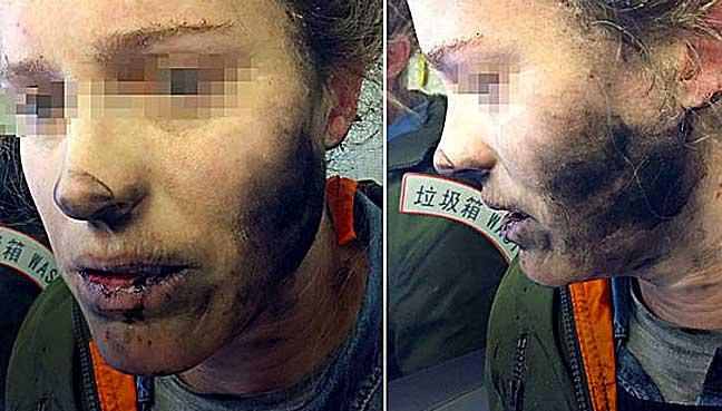 Cháy đen mặt vì tai nghe điện thoại phát nổ trên máy bay