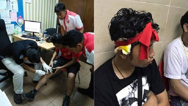 20 CĐV Myanmar bị đuổi đánh và cướp điện thoại tại Malaysia ngay sau trận cuối vòng bảng AFF Cup 2018