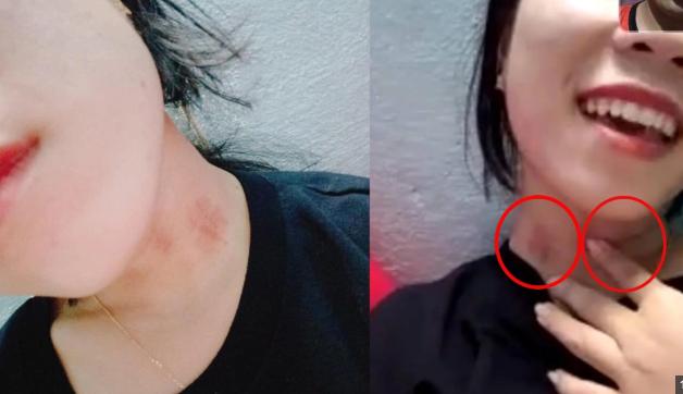 """Gọi video call cho bạn gái thấy vết lạ trên cổ, chàng trai nhờ CĐM tư vấn, hóa ra là dấu tích từ đêm """"tình yêu thăng hoa"""""""