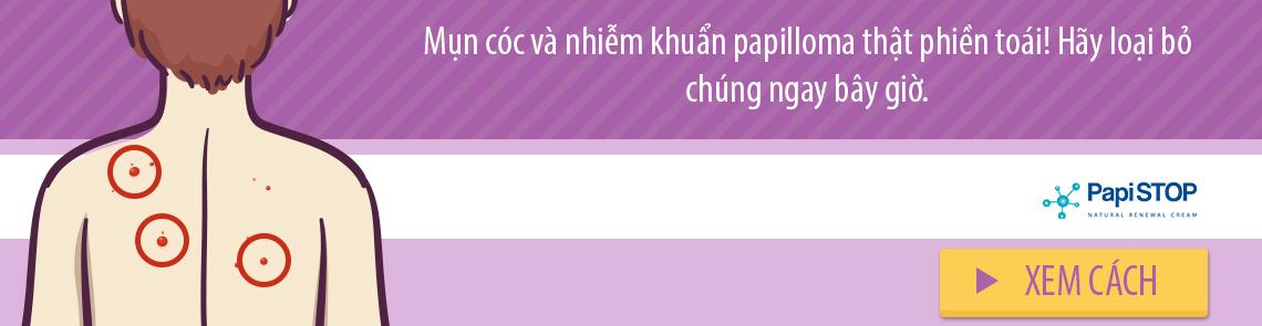 top_trangchu_PapiSTO_21012019