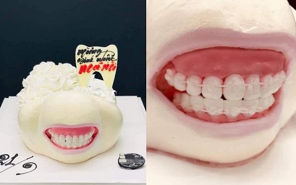 Khi bạn cố quên đi hàm răng đang niềng nhưng lũ bạn lại luôn muốn nhắc đến ngay cả trên chiếc bánh sinh nhật