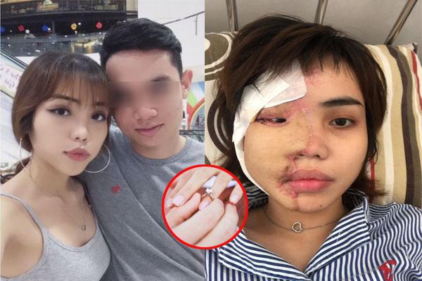 Nhìn từ tình yêu của cô gái bị chồng tạt hóa chất vào mặt mới thấy: Đàn ông tốt khi yêu chưa chắc đã tốt sau khi kết hôn!