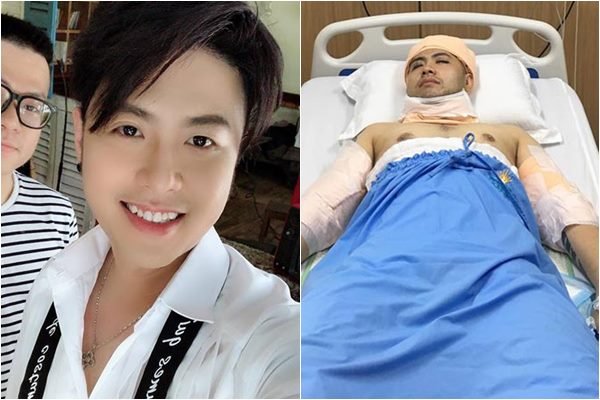 Akira Phan kể lại hành trình cắt mỡ 15 kg mỡ khổ cực để lấy lại ngoại hình khán giả yêu mến