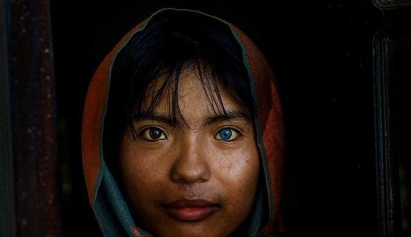 Cô gái Việt với đôi mắt hai màu được thừa kế từ bố và mẹ vừa đỗ Đại học