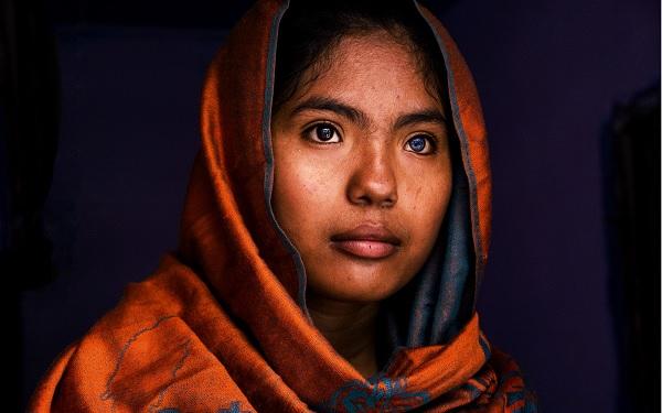 Ước mơ của nữ sinh mắt 2 màu xuất hiện trong ống kính của nhiều nhiếp ảnh gia