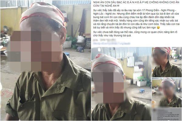 Nghệ An: Nghi án con dâu đánh mẹ chồng bầm tím mặt, bỏ đói không cho ăn cơm