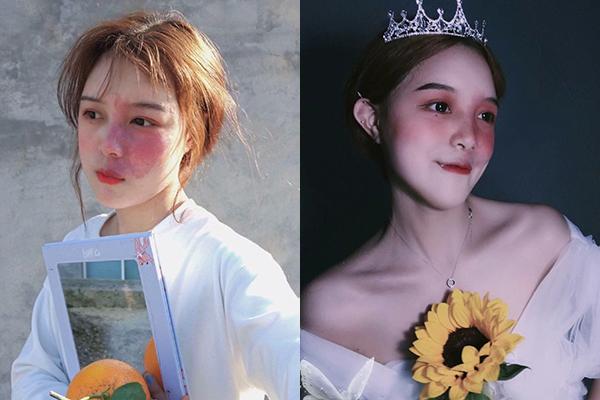 Cô gái có vết chàm lớn trên mặt trở thành mẫu lookbook nổi tiếng: Tự tin quyết định tất cả!
