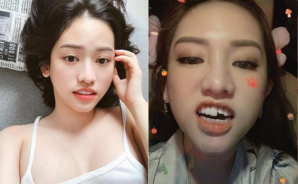 """Không nhịn được cười: Vừa tốn cả trăm triệu làm răng, Thúy Vi đi vệ sinh hấp tấp ngã """"sấp mặt"""" gãy luôn chiếc răng cửa"""