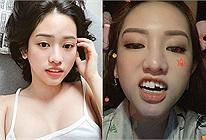 Không nhịn được cười: Vừa tốn cả trăm triệu làm răng, Thúy Vi đi vệ sinh hấp tấp ngã