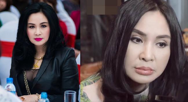 """Diva Thanh Lam gây choáng với đôi môi """"mazda"""" đang hot-trend: Có lẽ vừa tiêm nên vẫn còn sưng phồng thế kia?"""