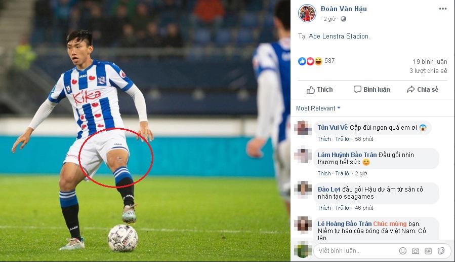 Văn Hậu khoe ảnh ra sân ở SC Heerenveen nhưng fans chỉ soi vết thương ở đầu gối: Hậu ơi, nhìn thương hết sức!