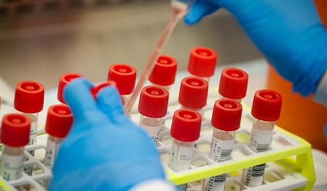 Chuyên gia Trung Quốc: Người nhóm máu A có nguy cơ nhiễm Covid-19 cao hơn
