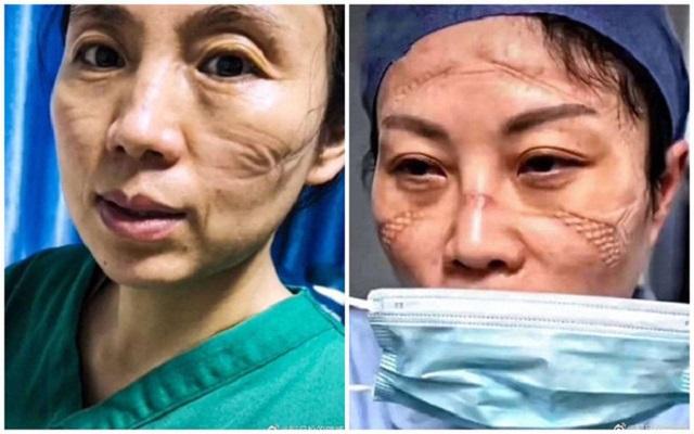 Nhìn gương mặt biến dạng, vật vờ của đội ngũ y bác sĩ ở tâm dịch Covid-19 mới thấy hết nỗi vất vả của nghề y