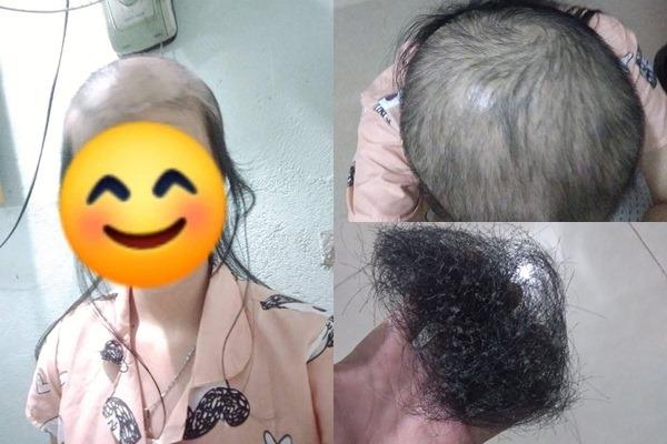 Cô gái khoe mái đầu trọc lốc vì nhổ tóc sâu 5 năm liên tục: Quen tay lâu dần thành ám ảnh khó bỏ
