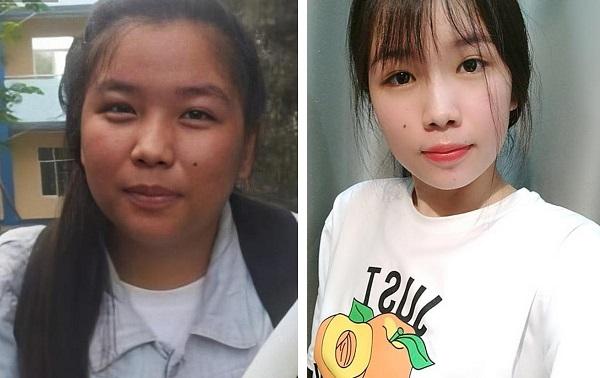 Cấp 3 tăng cân theo từng năm, lên đại học nữ sinh giảm 18 kg, còn biến da ngăm đen thành trắng sáng khiến bạn học không nhận ra