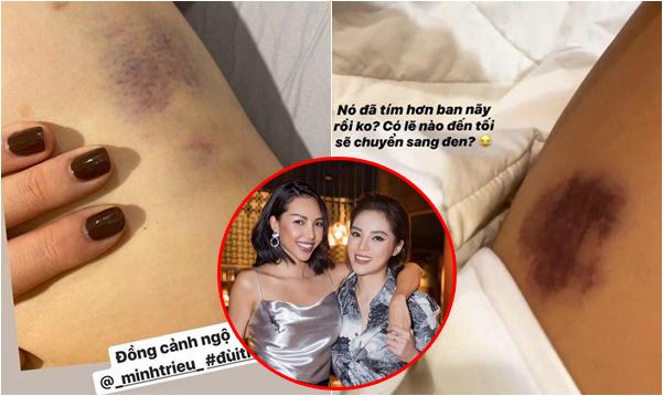 Kỳ Duyên - Minh Triệu cùng lúc đăng ảnh bị bầm đen trên đùi, chuyện gì đang xảy ra vậy?
