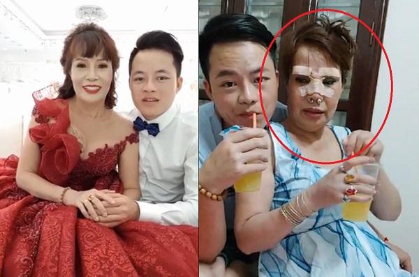 Bị chê không xứng với chồng, cô dâu 62 tuổi ở Cao Bằng lại tiếp tục phẫu thuật tân trang nhan sắc