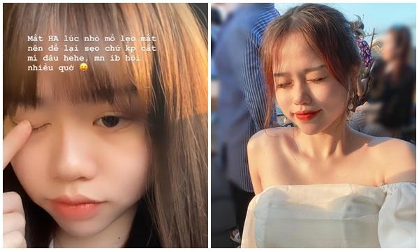 Vẫn chưa hết bị soi, bạn gái Quang Hải phải lên tiếng lý giải vì sao có đôi mắt trông như cắt mí