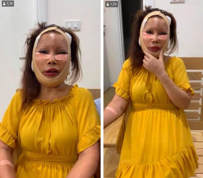 Tháo băng sau 20 ngày phẫu thuật, cô dâu 63 tuổi khiến dân mạng hoang mang vì mũi, miệng méo xệch như biến dạng!