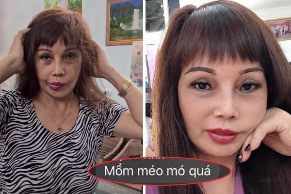 Nhan sắc gây thất vọng của cô dâu 63 tuổi sau phẫu thuật: Chiếc miệng méo xệch, mặt biến dạng xấu xí
